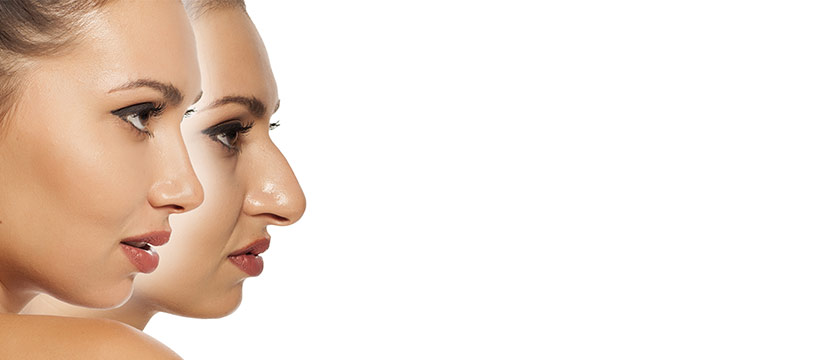 The best rhinoplasty surgeon Melbourne has