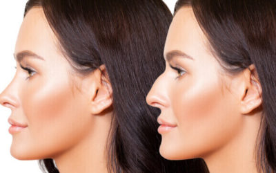 How Does Rhinoplasty Work: Understanding The Basics
