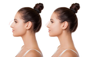 types of nose surgery