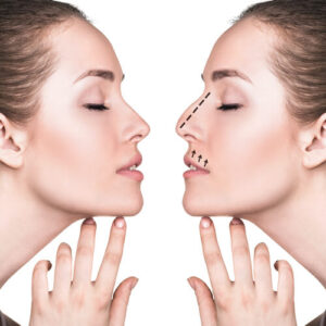 woman before and after rhinoplasty surgery