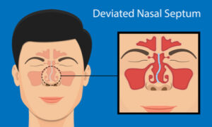 occurrence of deviated nasal septum