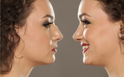 Nonsurgical Nose Job: Five Important Facts You Need To Know